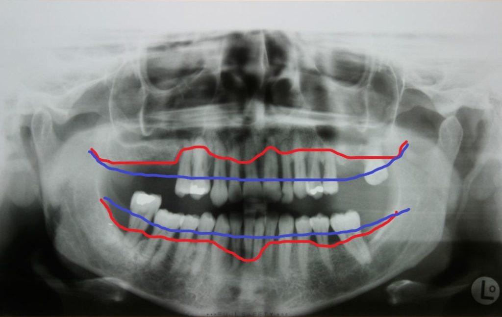 Zahnfleischerkrankung