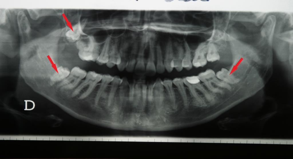 verlagerte Zähne